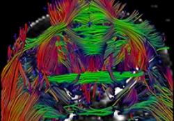 Magnetic resonance imaging (MRI) concept image