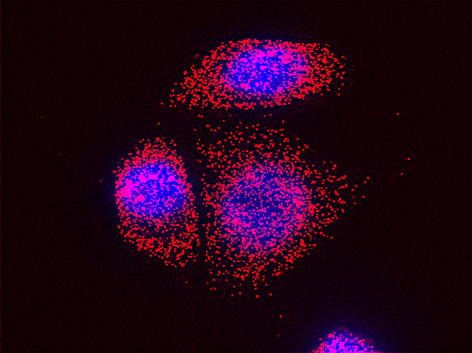 HER2 mRNA (red) visualized by single-molecule FISH in SKBR3 cells