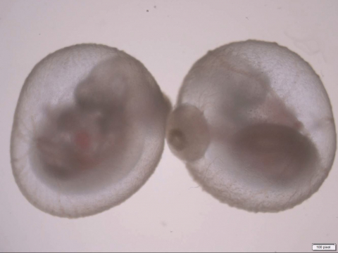 A mouse embryo growing outside the womb, from the Hanna lab