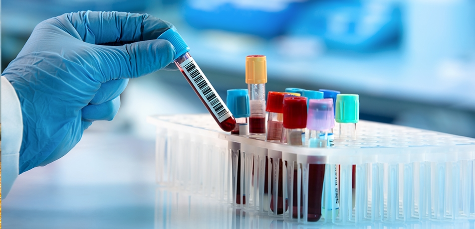 Biomarkers in the blood | Big data is brought to bear on multiple