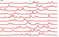 Spontaneous Cortical Neuronal Activity