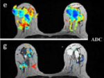 Human MRI of Function and Disease