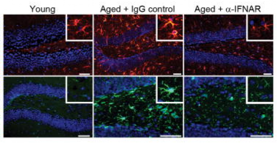 Aging-induced immunological signature of the brain's choroid plexus negatively regulates neurogenesis and cognitive function