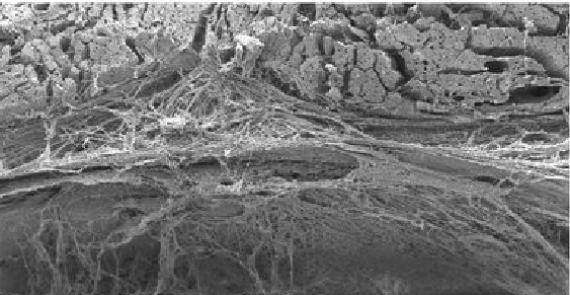 Meningeal lymphoid structures are activated under acute and chronic spinal cord pathologies